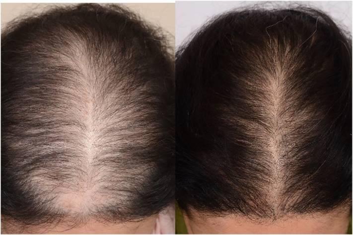 31-aarig-kvinde-med-diffust-haartab