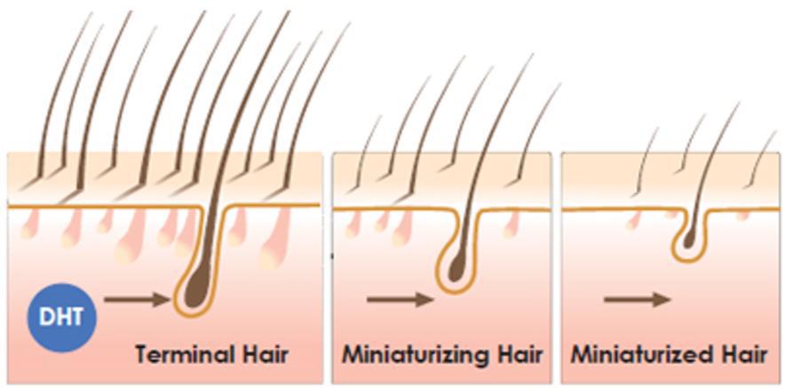 DHT medføre rhårtab. Processen kaldes miniaturisering og sker hos mænd, der bliver skaldet. Hårspecialist og Læge Ulrik Knap