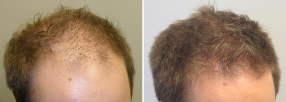 Medicinsk hårtabsbehandling Hårspecialist Læge Ulrik Knap