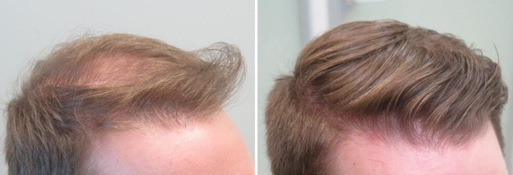 hårtab mand medicinsk hårterapi