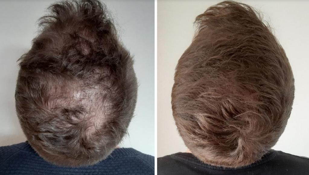 Hårtab hos mænd før og efter behandling med medicin og PRP (platelet rich plasma / platelet rich fibrin) Læge Ulrik Knap