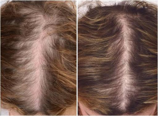 kvinde med kvindeligt haartab, Hårspecialist Læge Ulrik Knap