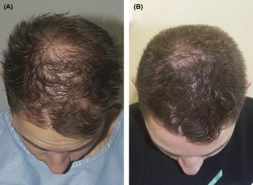 PRP behandling af hårtab hos mænd