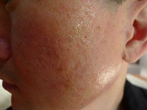 Akne ar efter behandling med fraktioneret CO2 laser - knapmd.dk
