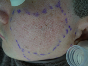 Akne ar under behandling med fraktioneret CO2 laser - knapmd.dk