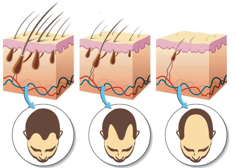 Hårrødderne mister efterhånden deres blodforsyning i takt med udvikling af hårtabet. Dette sker som led i miniaturiseringen. Hårspecialist Læge Ulrik Knap