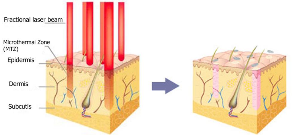Fraktioneret CO2 laser aknear