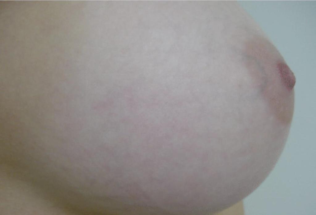 Strækmærker på bryst efter behandling - læge ulrik knap