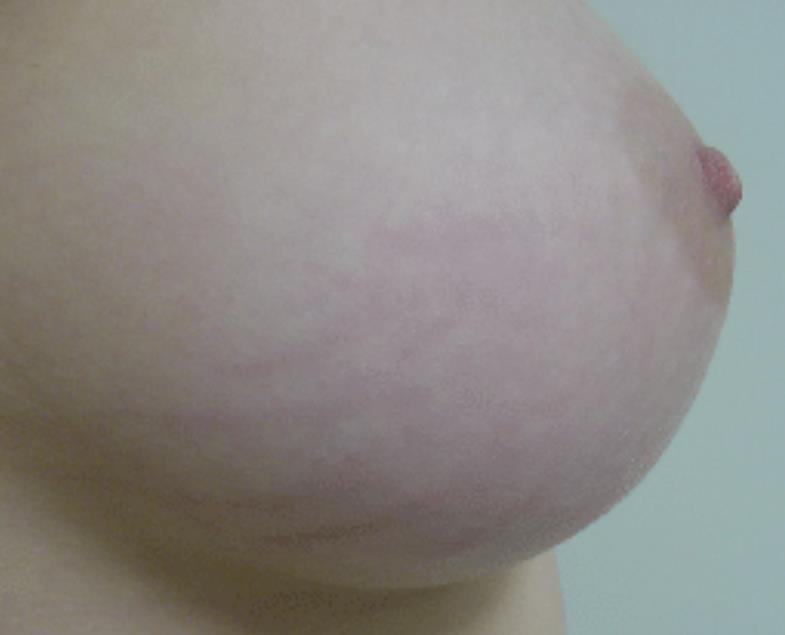 Strækmærker på bryst før behandling - læge ulrik knap