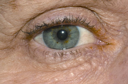 Syringomer på nedre øjenlåg