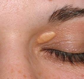 Kolesterol pletter omkring øjnene xanthelasma kan fjernes med laser læge ulrik knap