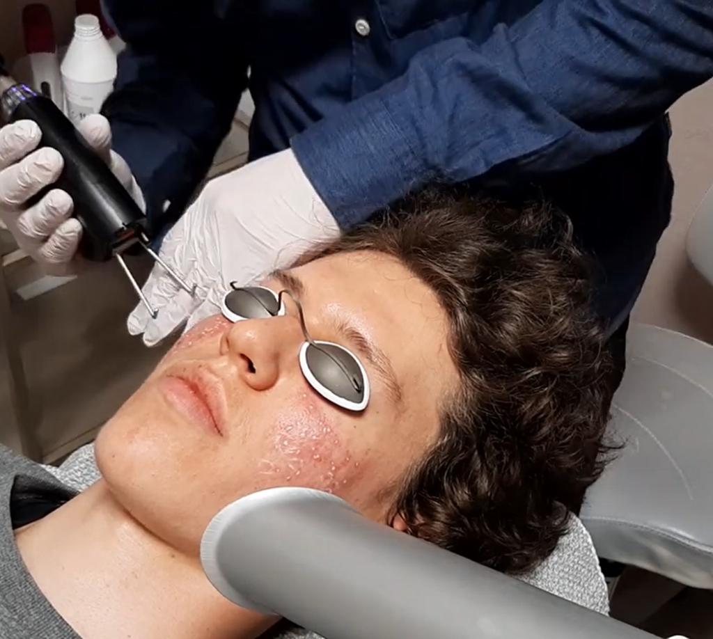 fraktioneret laser behandling ar efter akne læge ulrik knap