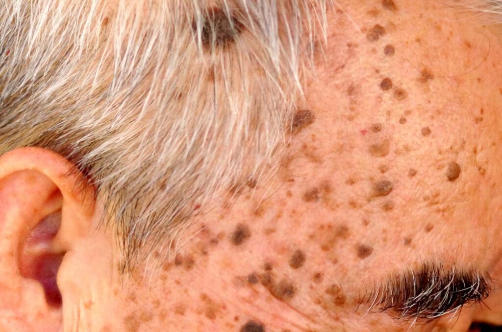 Gammelmandsvorter kan sidde både i ansigtet og på kroppen. De fjernes nemt og skånsomt med laser uden at efterlade skæmmende ar