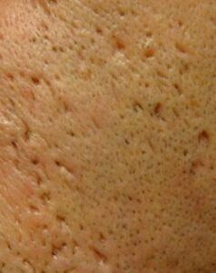 behandling af akne ar - ice pick scars