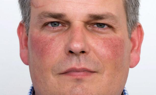 Før laserbehandling af diffus rødme i ansigtet læge ulrik knap