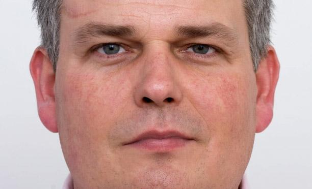 Efter laserbehandling af diffus rødme i ansigtet læge ulrik knap