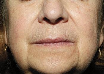Efter behandling af rosacea, rødme i ansigtet og karsprængninger med laser - læge ulrik knap