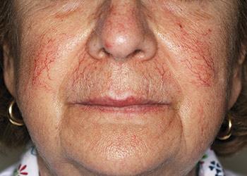 Før behandling af rosacea, rødme i ansigtet og karsprængninger med laser - læge ulrik knap