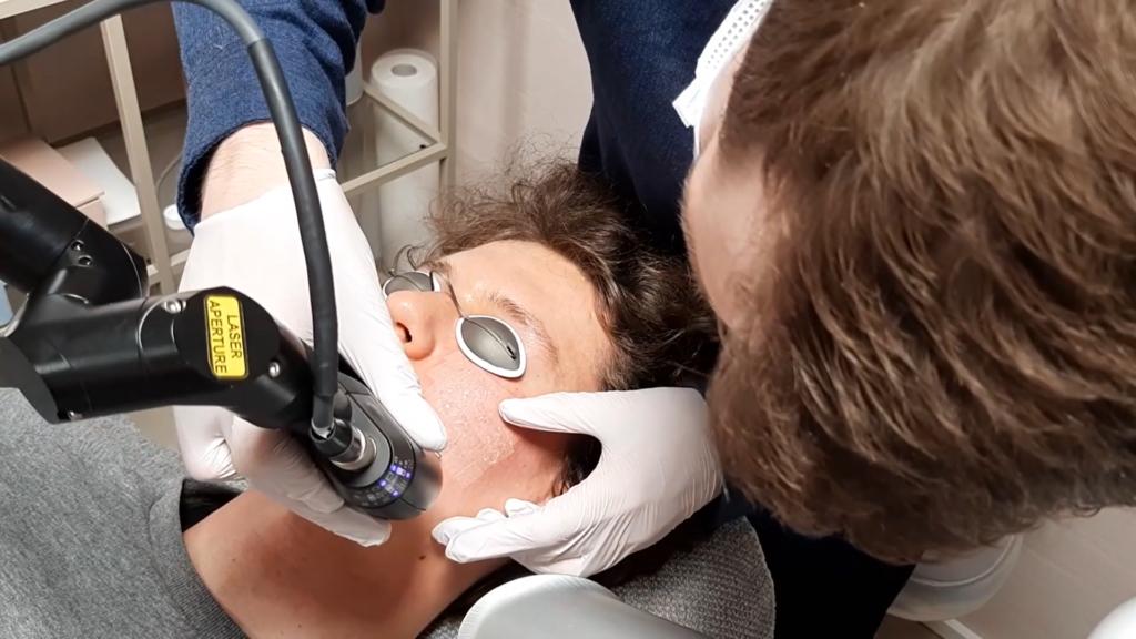 Akne ar behandling fraktioneret CO2 laser læge ulrik knap