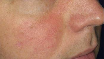 Efter behandling af rødme i ansigtet knapmd.dk