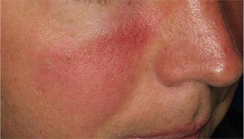 Før behandling af rødme i ansigtet knapmd.dk