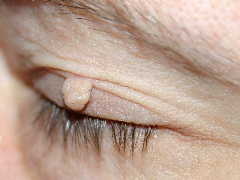 Skin tags er stilkede vorter, der nemt og effektivt fjernes med laser læge ulrik knap