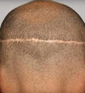 ar efter FUT hårtransplanation