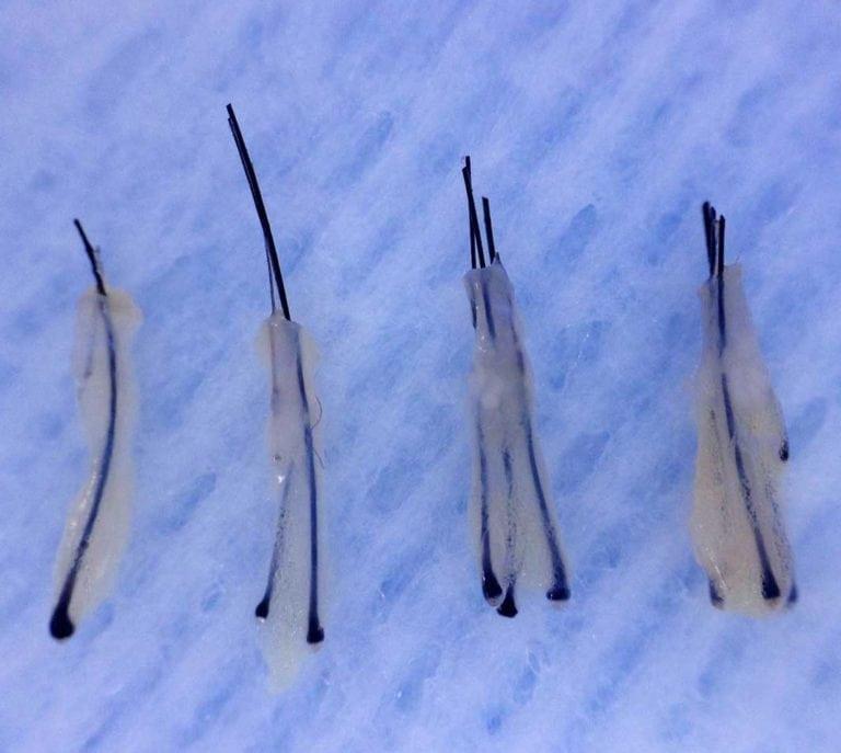 Donorhår efter høsning. Dette kaldes grafts, som består af 1-4 hårsække