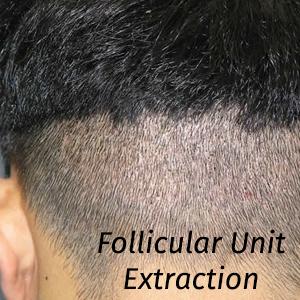 Donorområde efter FUE hårtransplantation