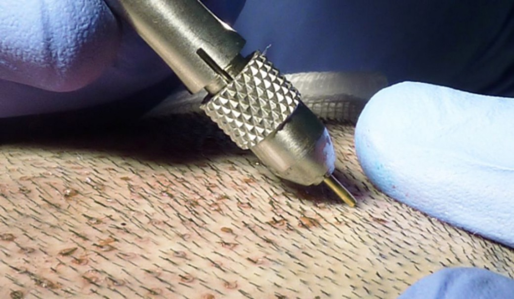 høst af donorhår hårtransplantation FUE