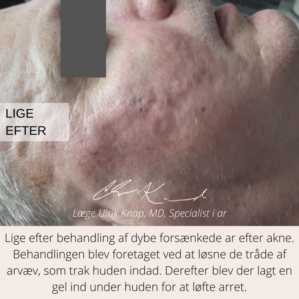 Efter behandling af aknear med subcision - læge ulrik knap