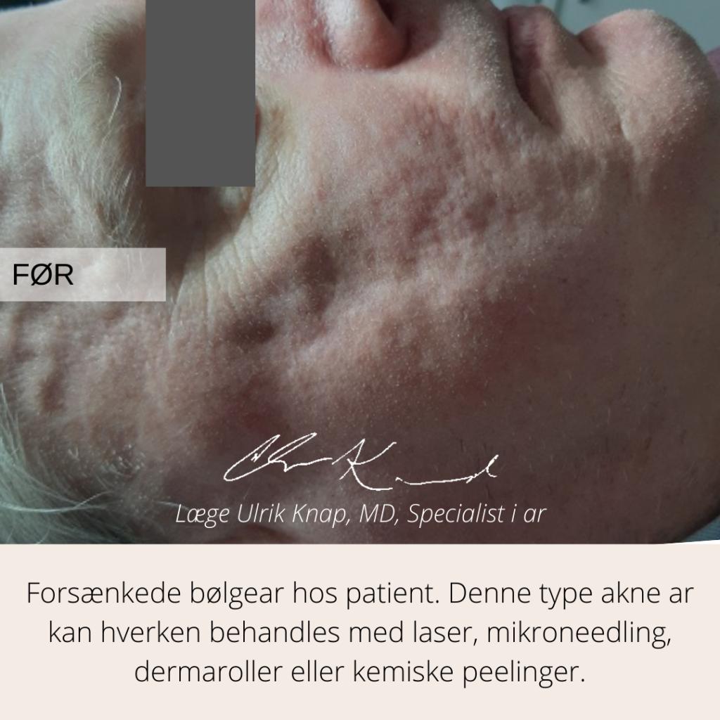 Før behandling af aknear med subcision - læge ulrik knap