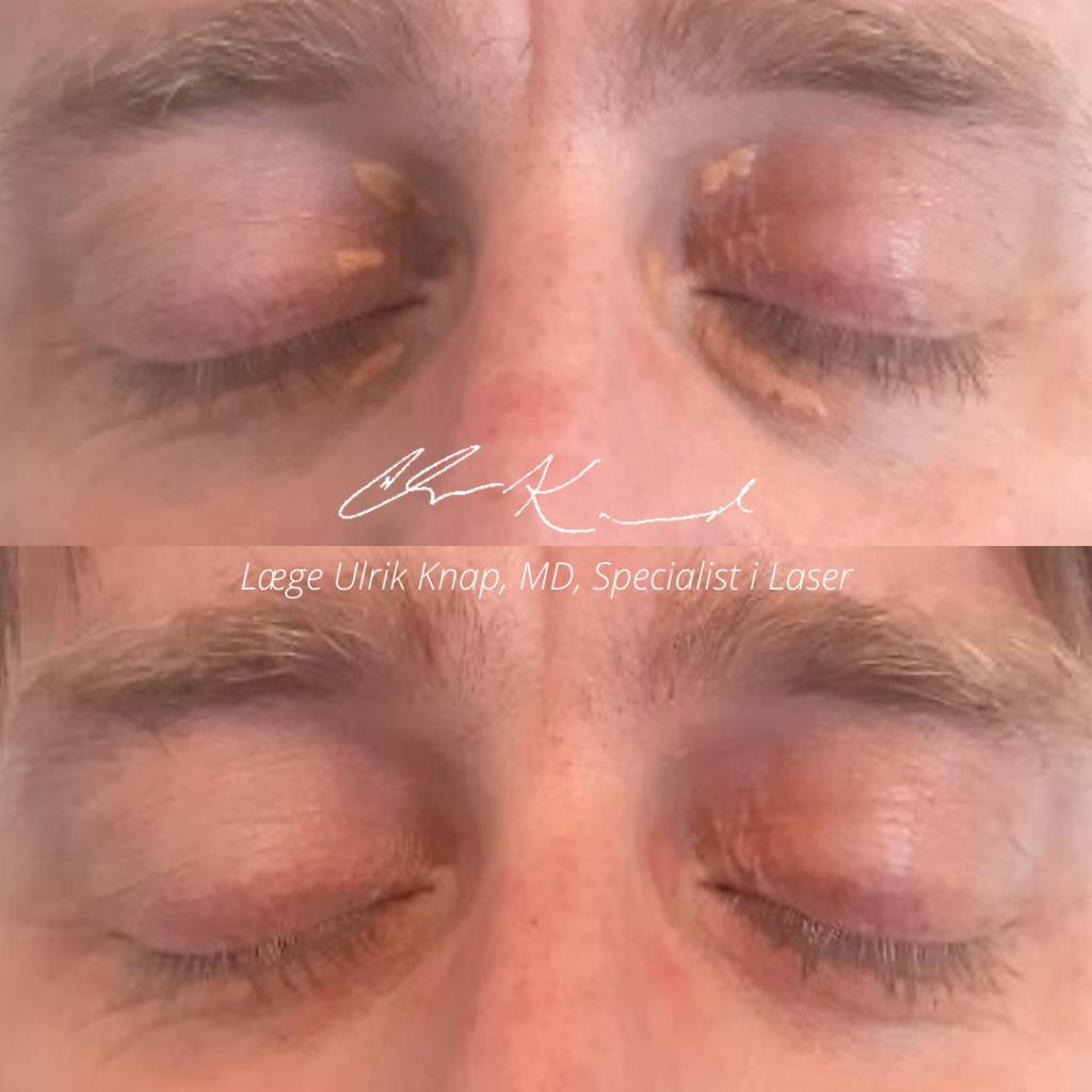 Før-/efterbilleder. Behandling af xanthelasma (fedtpletter) omkring øjnene - Læge Ulrik Knap